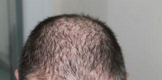 Przeszczep włosów - jaką metodę wybrać