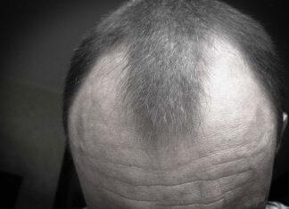 zabieg przeszczepu włosów